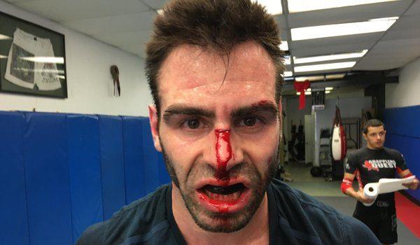 GPL-stream nu: Busquet tilbage ved filten 10 dage efter sin MMA-sejr